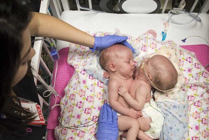 ՖՈՏՈ. ՏԵՍԱՆՅՈՒԹ. Հրապարակել է սիամական երկվորյակների առանձնացման վիրահատության ընթացքը