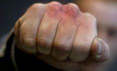 Մասիսի ԲԿ-ի տնօրենը ծեծկռտուքի հետևանքով տեղափոխվել է հիվանդանոց