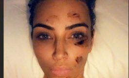 ՏԵՍԱՆՅՈՒԹ. Լուրջ հիվանդությունը գրեթե ամբողջությամբ ախտահարել է Քիմ Քարդաշյանի դեմքը