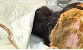 ՏԵՍԱՆՅՈՒԹ. Բժիշկները պայքարում են այրվածքներ ստացած 12-ամյա աղջնակի կյանքի համար