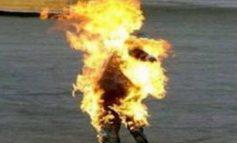 Արտառոց դեպք Երևանում. մարմնի 90 տոկոս այրվածքներով Այրվածքաբանության կենտրոն է տեղափոխվել մի տղամարդ