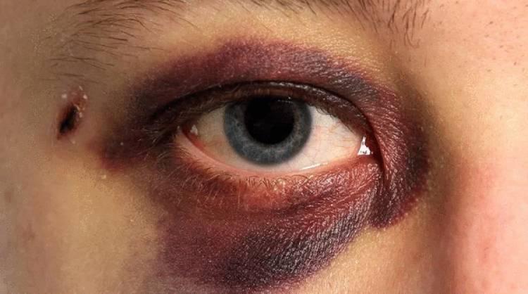 Կոտայքի մարզպետի եղբայրը քաղաքացու աչքին հարվածել է վեցից յոթ անգամ