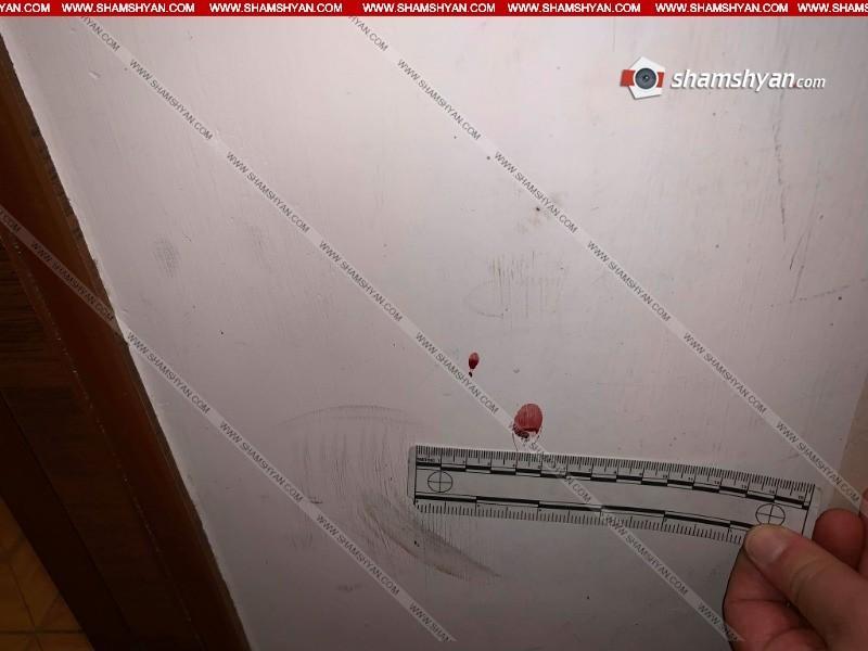 Արտակարգ դեպք Երևանում. ամուսինը դանակի մի քանի հարված է հասցրել կնոջը, ապա՝ հարևանին
