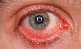 «Աչքի գրիպն» ակտիվացել է. նախազգուշացնում են մասնագետները