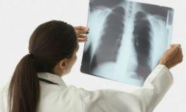 9 միլիոն երեխա կարող է մահանալ թոքաբորբից, թե քայլեր չձեռնարկվեն