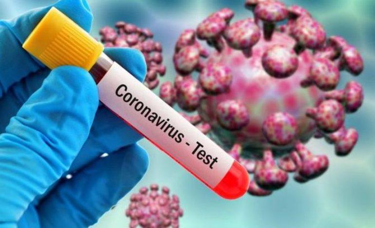 Կորոնավիրուսով վարակման 257 նոր դեպք մեկ օրում. մահացել է 3 մարդ
