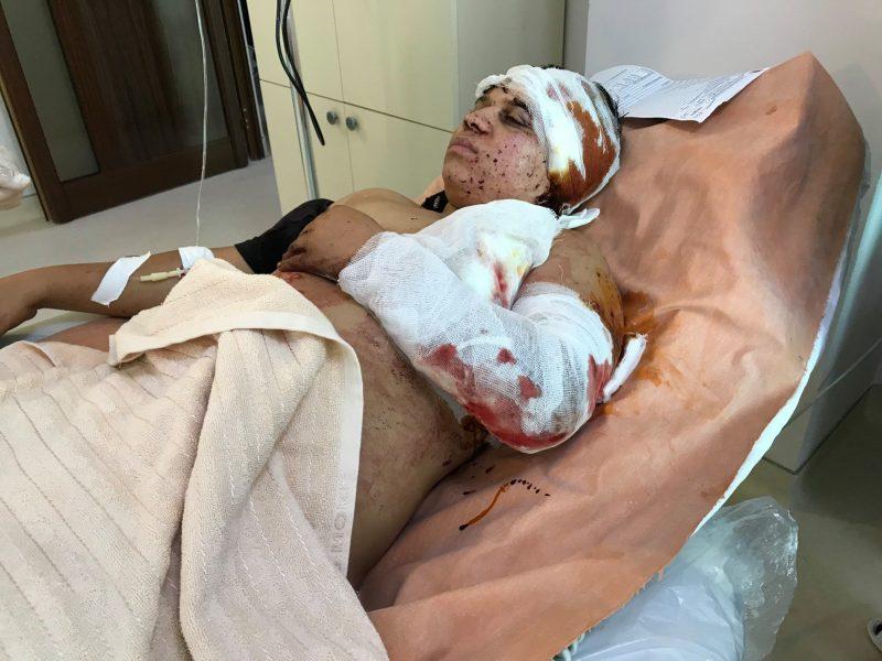 ՖՈՏՈ 18+ Արցախի ՄԻՊ-ը հրապարակել է ադրբեջանական հրետակոծությունից վիրավորված քաղաքացիների լուսանկարներ